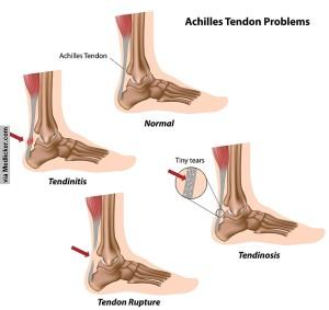 achilles-tendon-problems-1400235782-6ab016a0