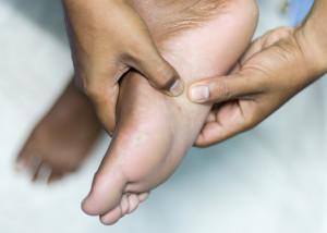 "Inferior or plantar heel pain ""Plantar fasciitis""  (Health concept)"